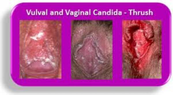 mycose vaginale cause